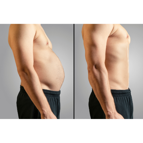 lose belly fat fast calories
